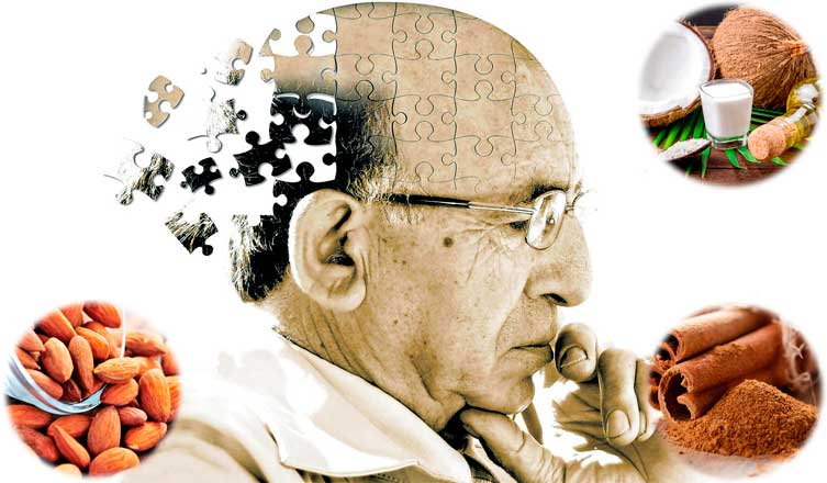 Top Tips To Prevent Alzheimer's Disease
