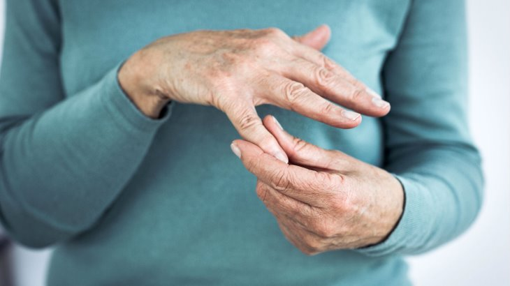 Natural Remedies for Arthritis and Fatigue
