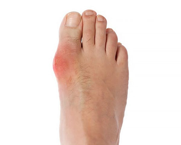 The Top Home Remedies For Gout