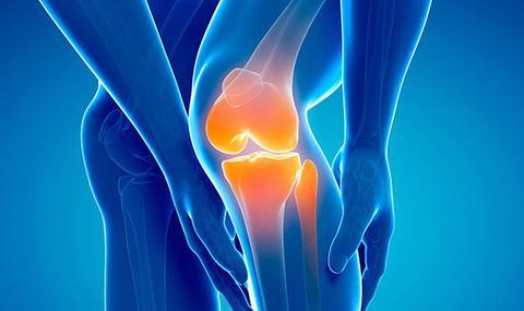 7 Effective Self-Treatments for Arthritis