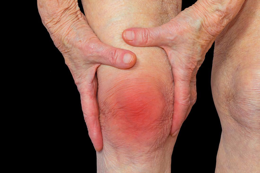 How To Exercise With Rheumatoid Arthritis